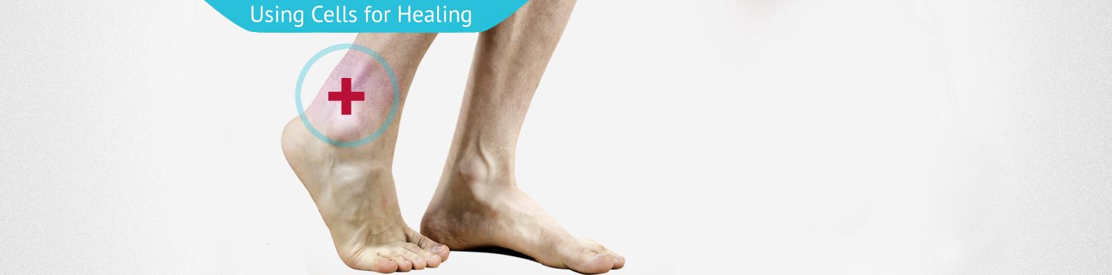 Replicel-tendon-repair3